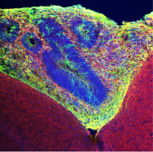 Human-organoid-tissue-green-grafted-into-mouse-tissue.-Neurons-are-labeled-with-red-dye.