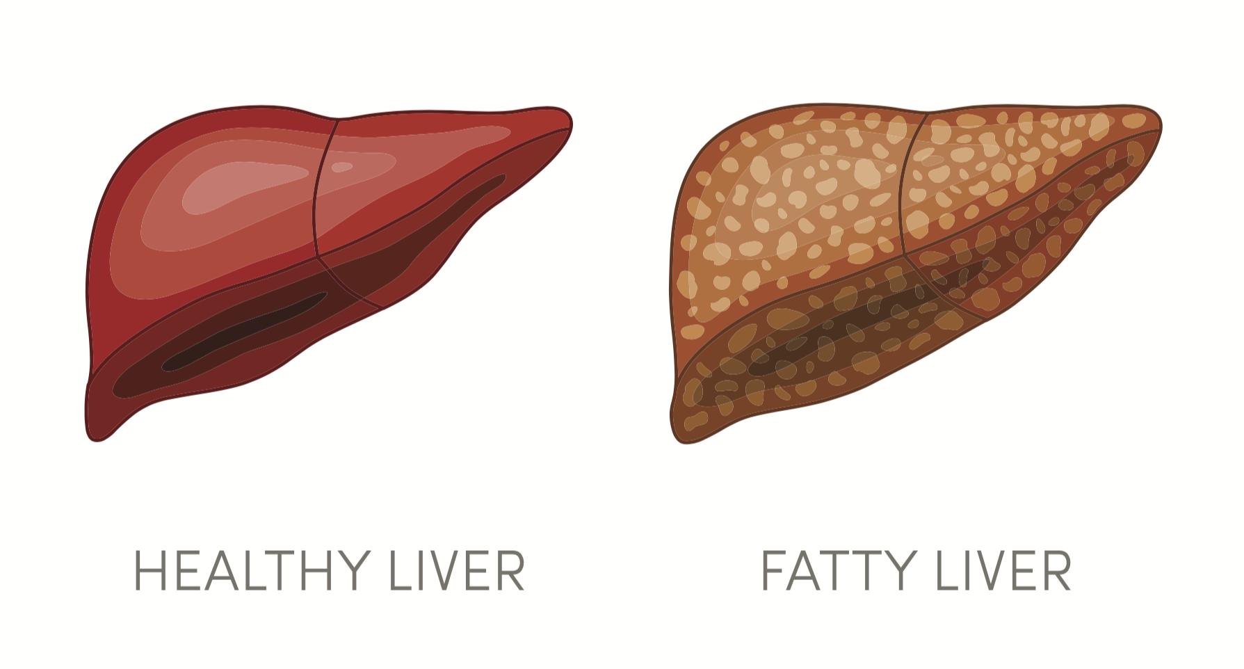 liver_fattyliver