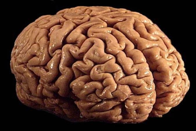 Brain_01
