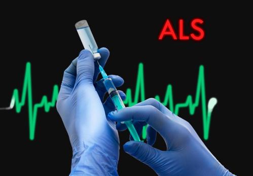 ALS Picture1