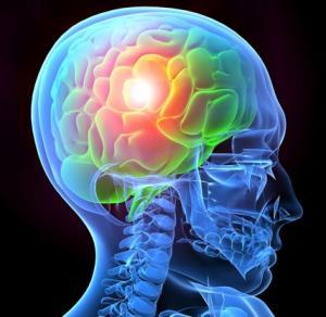 Stories that caught our eye: SanBio's Traumatic Brain Injury